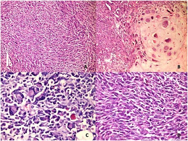 2 Ovarian Cancer Symptoms