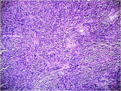 primary biphasic synovial sarcoma of left parapharyngeal